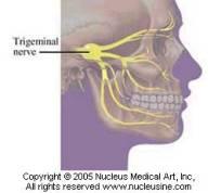 trigeminal neuralgia cure